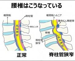 症 脊椎 間 狭窄